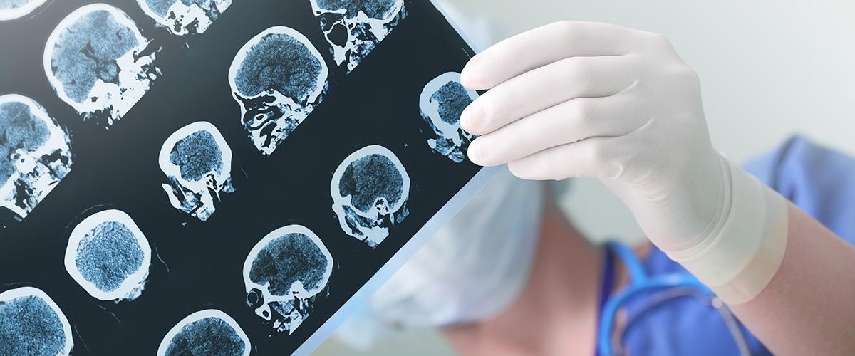Radiology Malpractice